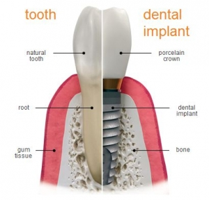 Dental Implants Treatment Brisbane